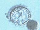 Day5 拡張胚盤胞4BB
